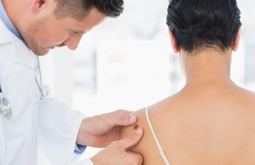 Анализы не нужны: Google научили распознавать кожные заболевания по фото
