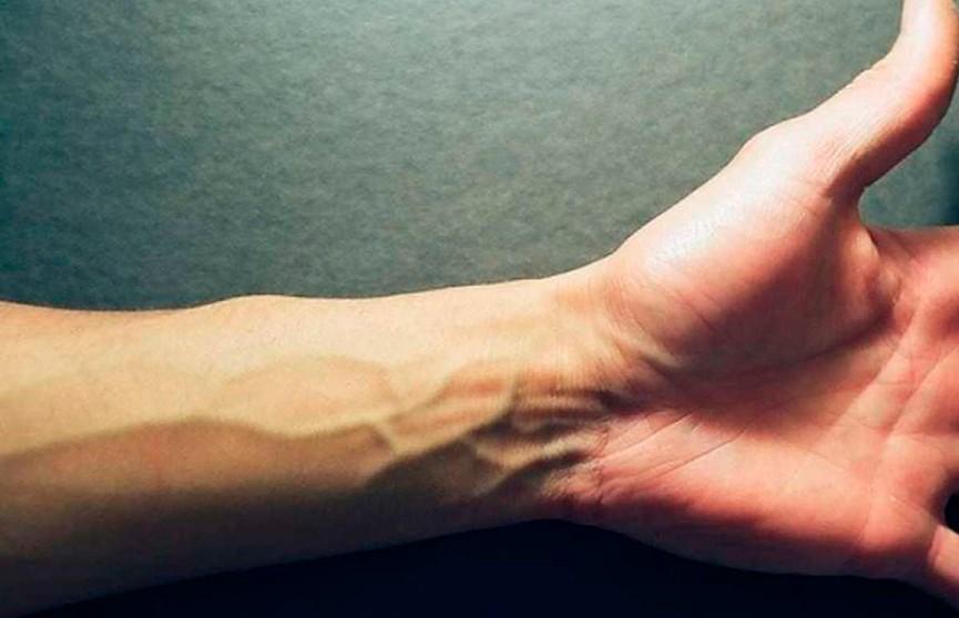 Американские учёные напечатали на 3D-принтере кожу с сосудами