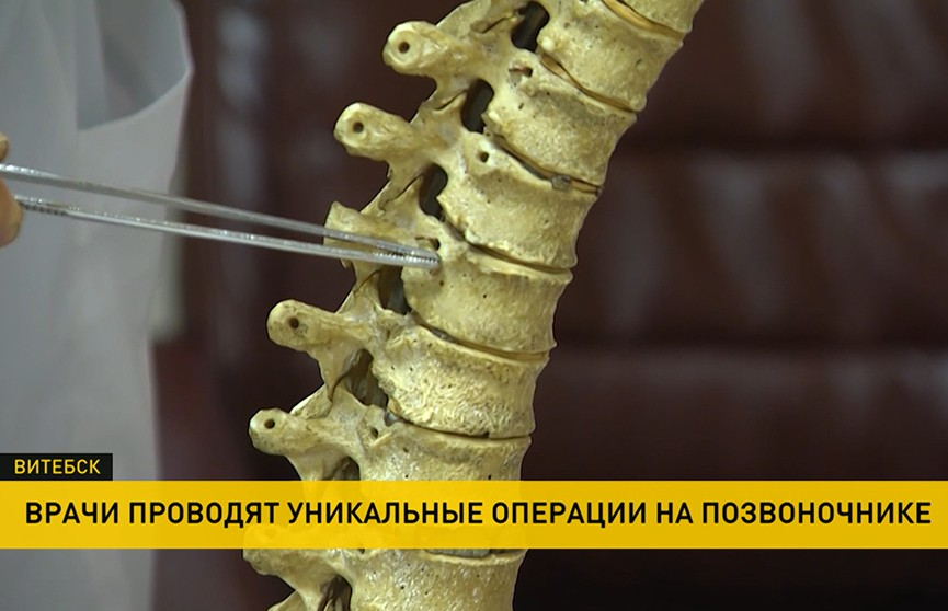 Методика, которая творит чудеса: уникальные операции на позвоночнике проводят витебские хирурги