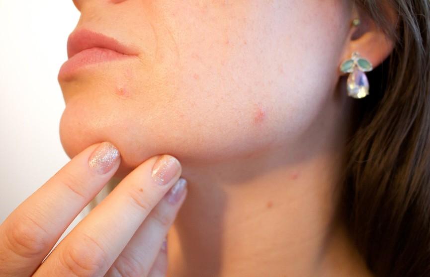 Какие продукты вызывают прыщи на лице? Рассказывает врач
