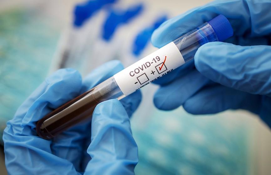 Вирусолог назвала причину ошибок тестов на COVID-19