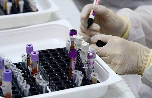 Антитела для лечения COVID-19 обнаружили канадские ученые