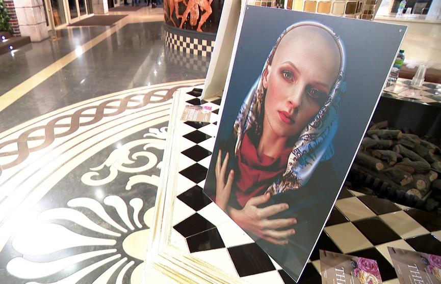 Благотворительная выставка «Вкус жизни» открылась в Минске: о красоте тех, кто проходит курс химиотерапии