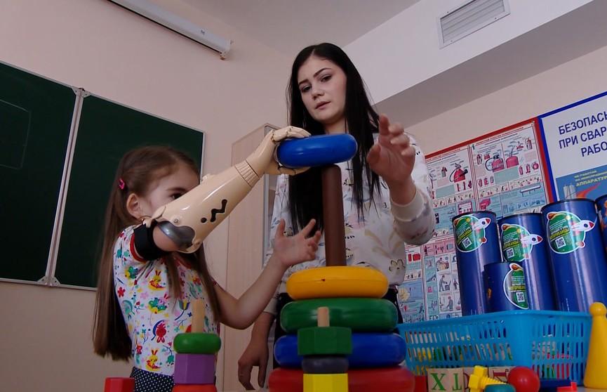 Рука, как у супергероя: уникальные бионические протезы установили белорусским детям