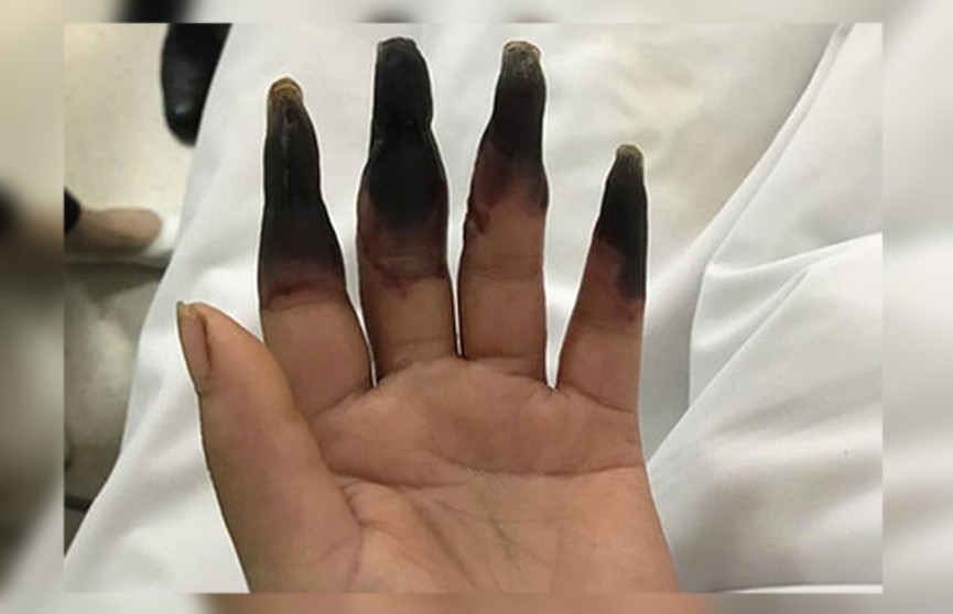 После уборки у китаянки почернели пальцы на руке