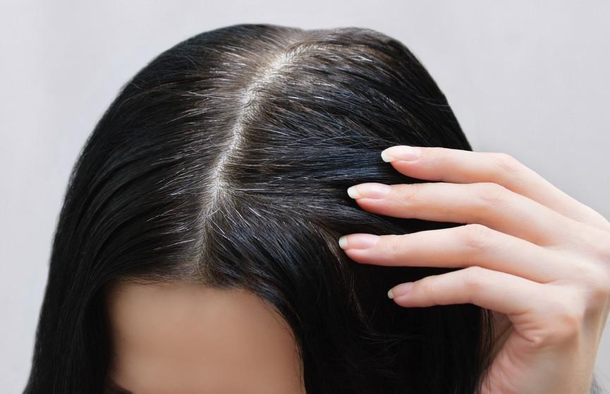 «Если вовремя остановить, то седина уйдет». Трихолог назвала заболевание, при котором волосы рано теряют цвет