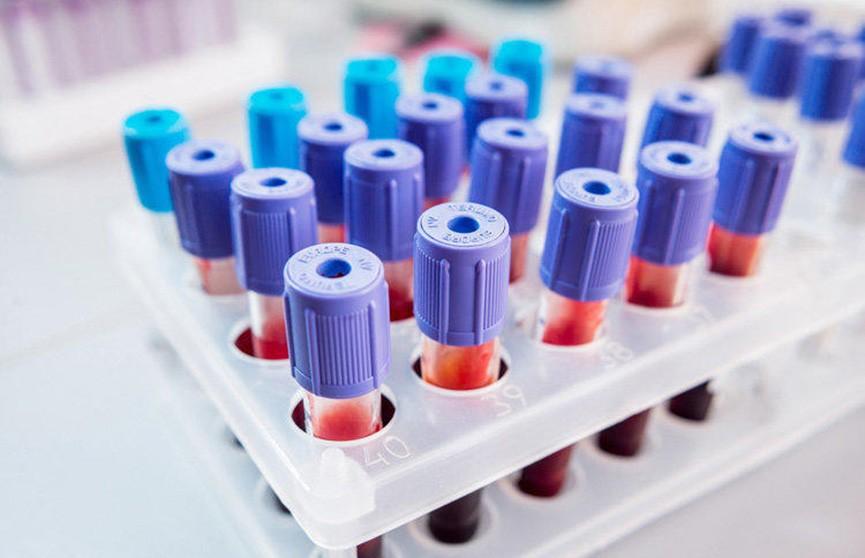 В два раза больше людей стали болеть сифилисом в Европе