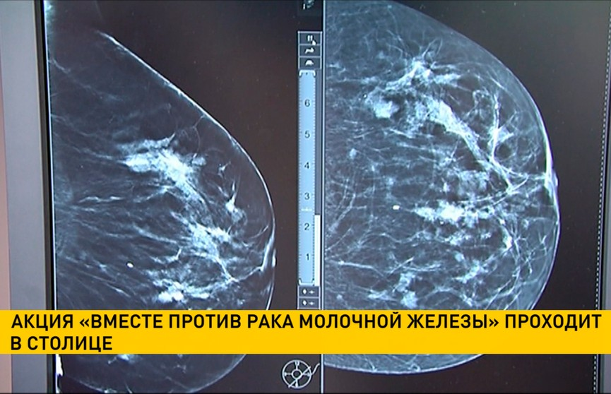 Акция «Вместе против рака молочной железы» проходит Минске