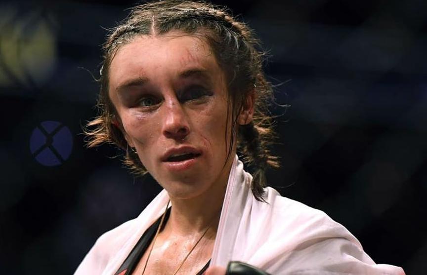 Девушка-боец шокировала фанатов видом после жуткой травмы на турнире UFC