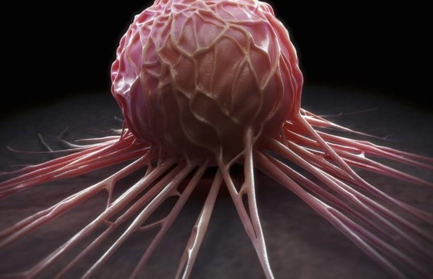 Найден необычный способ убийства агрессивных раковых клеток
