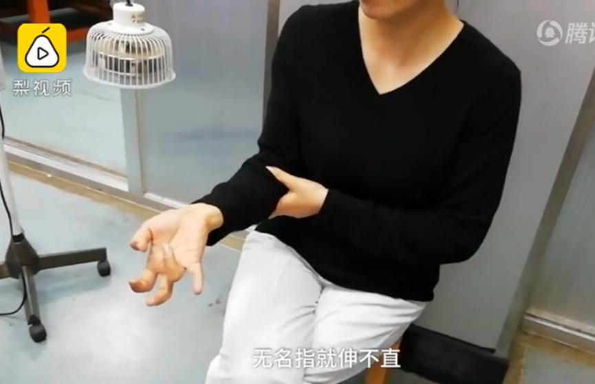 Китаянка несколько дней не отрывалась от смартфона и не смогла разогнуть пальцы