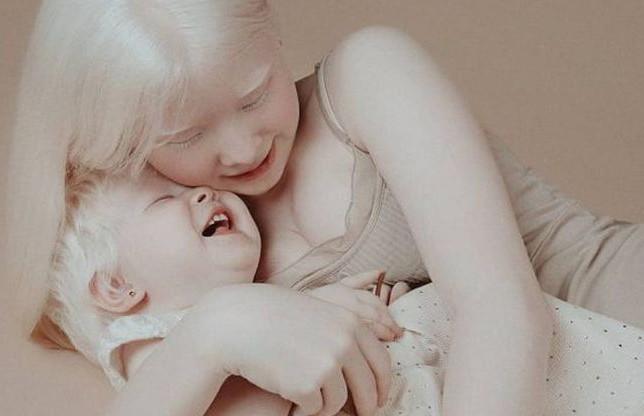 Сестры-альбиносы завоёвывают модельный мир: фото, согревающие сердца