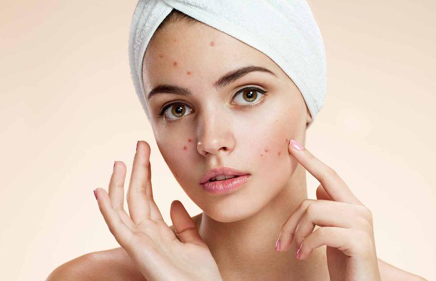 Привычки, которые способны испортить вашу кожу лица