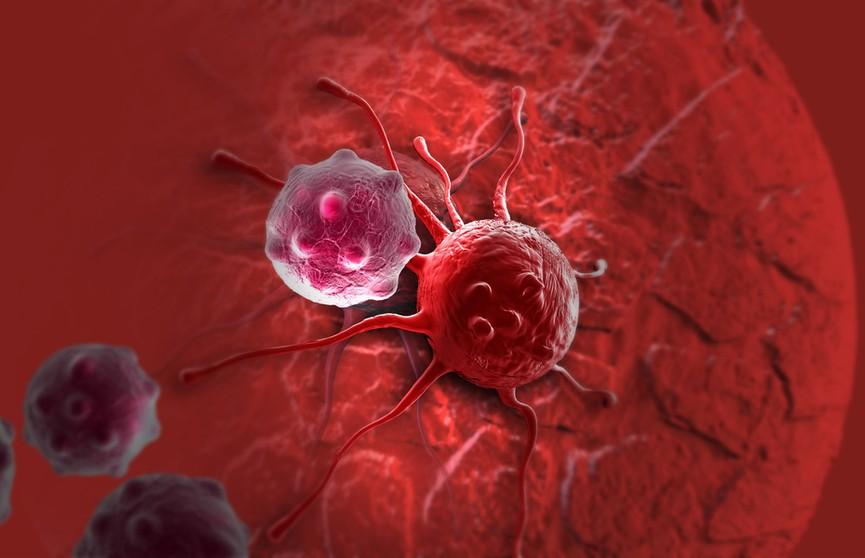 Врач-колопроктолог назвал самые ранние признаки рака толстой кишки