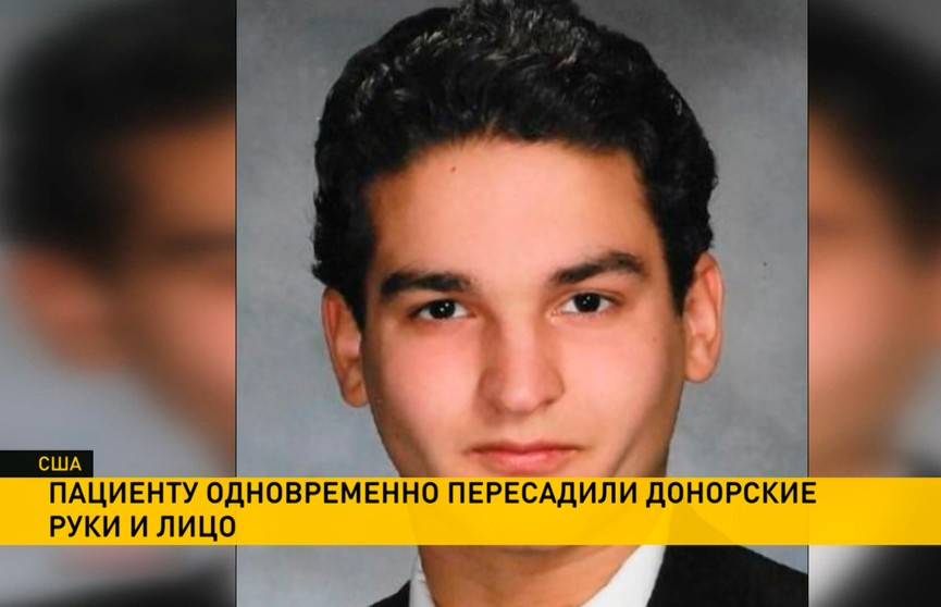 Уникальную операцию провели в Америке: 19-летнему парню пересадили донорские руки и лицо