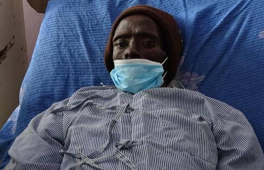 Мужчина «ожил» в морге во время бальзамирования