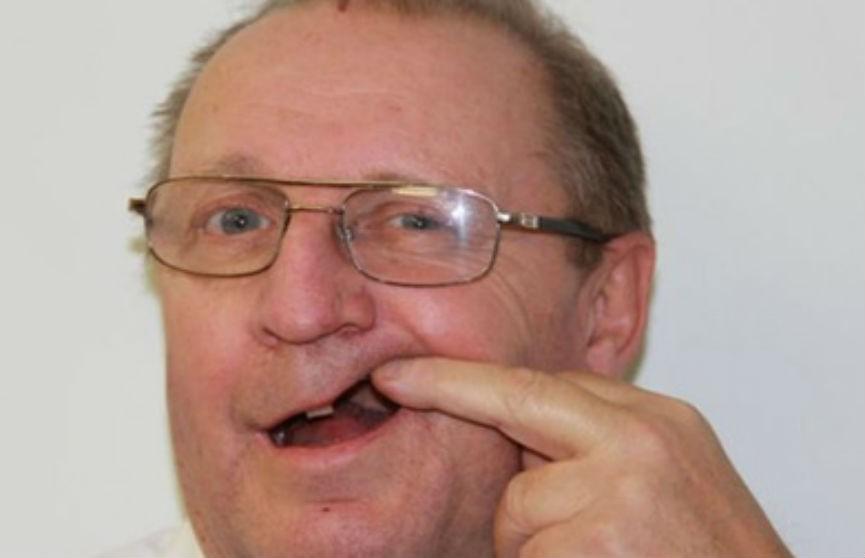 Британец полтора года ждал своей очереди к стоматологу, не дождавшись, вырвал себе зуб плоскогубцами