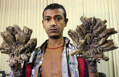 «Человек-дерево» из Бангладеш попросил врачей ампутировать ему руки