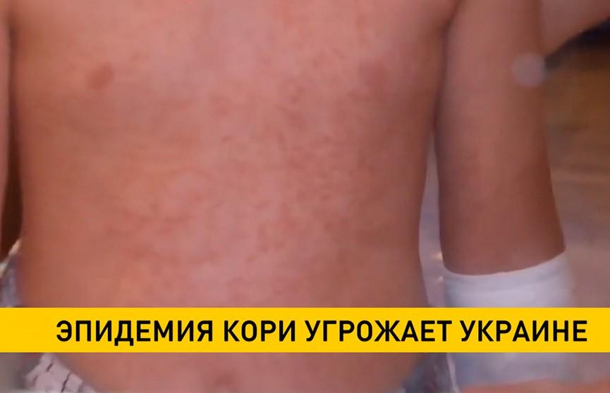 Эпидемия кори угрожает Украине