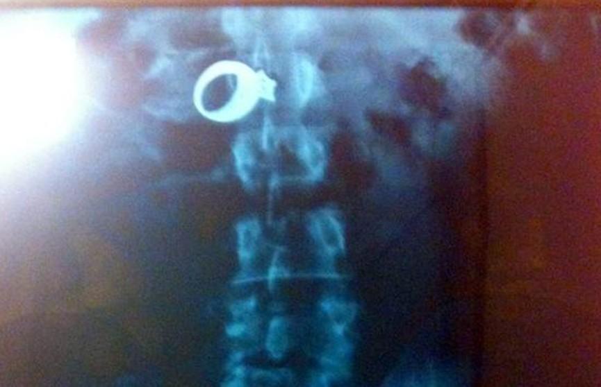 Турист украл  и проглотил кольцо с бриллиантом в Турции
