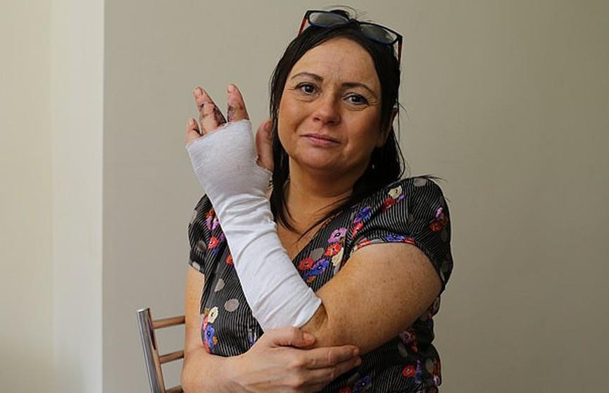 «Котик поцарапал»: женщина лишилась пальца и едва не умерла