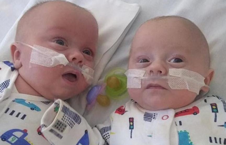 Самые маленькие в мире близнецы родились в Британии