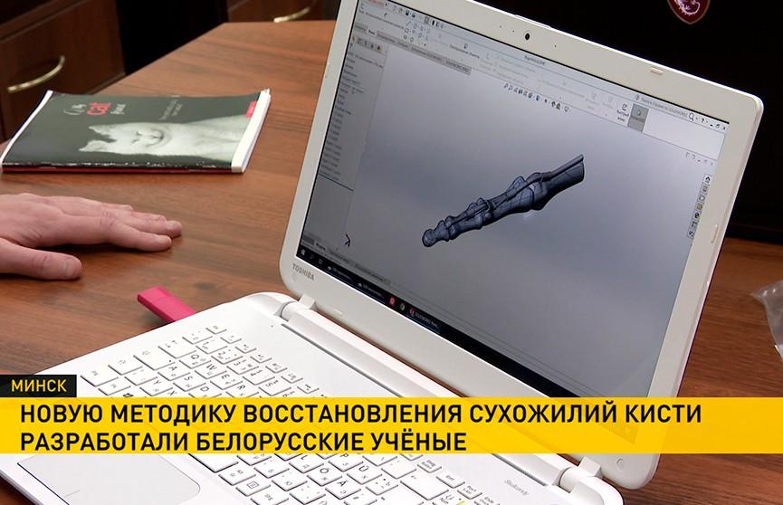 Новая разработка белорусских учёных поможет белорусским травматологам