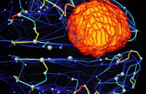 Онколог назвал первые признаки опухоли мозга