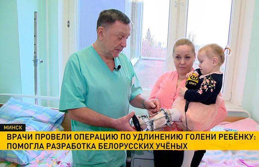 Благодаря разработке белорусских учёных 2-летнему ребёнку провели операцию по удлинению голени