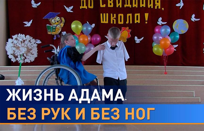 Адам Эссерт – белорусский Ник Вуйчич: Я живу. Разве этого мало для счастья?