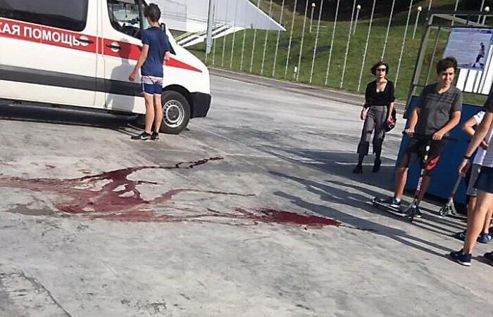 Умер 16-летний велосипедист, разбившийся в витебском скейт-парке