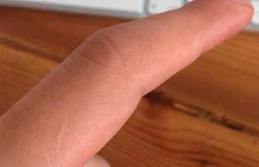 Загадочный шрам на пальце левой руки есть у каждого мужчины: необычный флешмоб набирает популярность в Сети