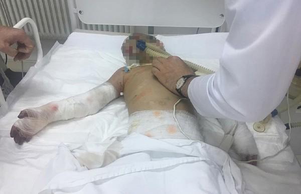 Медики плакали: 7-летняя девочка из Ингушетии чуть не погибла от истязаний