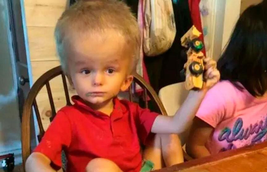 Родители отказались от него и-за большой головы, но жизнь дала ему второй шанс