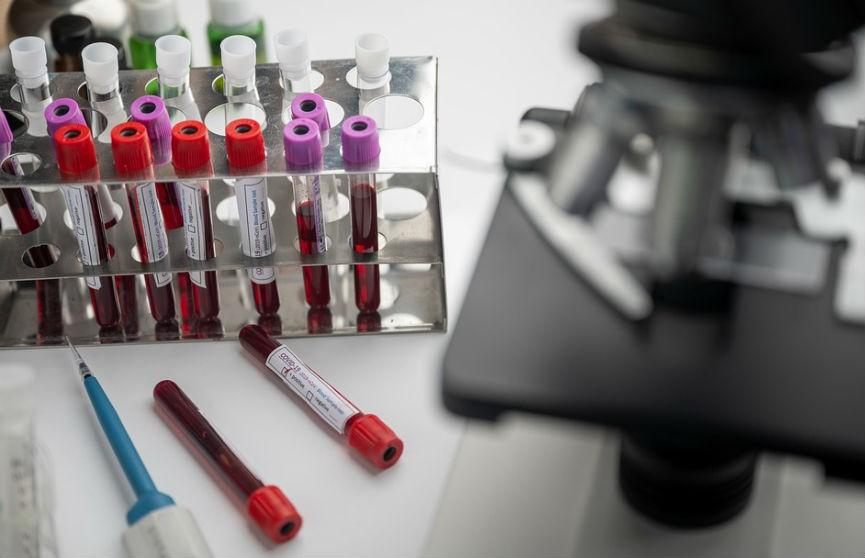 Минздрав: Все белорусы, принявшие участие в исследованиях вакцины «Спутник V», чувствуют себя удовлетворительно