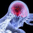 Кардиолог назвал признаки надвигающегося тромбоза мозга