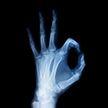Врачи научились делать рентгеновские 3D-снимки