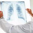 Эксперт назвал причину поражения легких при коронавирусе