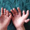 Трёхлетнюю девочку с 14 пальцами на руках успешно прооперировали в Китае
