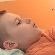11-летний мальчик, перенесший в Беларуси сложнейшую 10-часовую операцию, уже идет на поправку