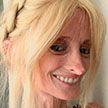В 40 лет выглядит как старушка! История девушки с редким заболеванием