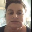 Женщина стала похожа на «человека-слона» после похода к косметологу