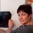 Терпела адские боли: россиянка 23 года прожила с ножницами в животе