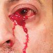 Из глаз итальянца с редким заболеванием текут кровавые слёзы