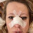 Ксения Собчак сломала нос и объявила конкурс на «самую смешную версию»