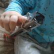Спасатели достали палец годовалого ребенка из кухонных щипцов