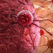 Названа причина устойчивости онкологии к лечению