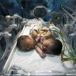 Одно сердце на двоих: необычные сиамские близнецы родились в Индии