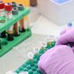 Во Франции подтвердились два случая заражения новым коронавирусом