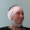 Белорусские врачи первые в мире провели уникальную операцию – вернули девушке слух и пересадили почку